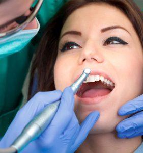 tratamientos Estética dental zaragoza
