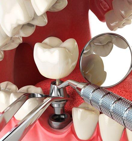 tratamiento implantes dentales zaragoza