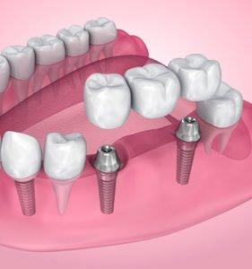 tratamiento puente dental zaragoza