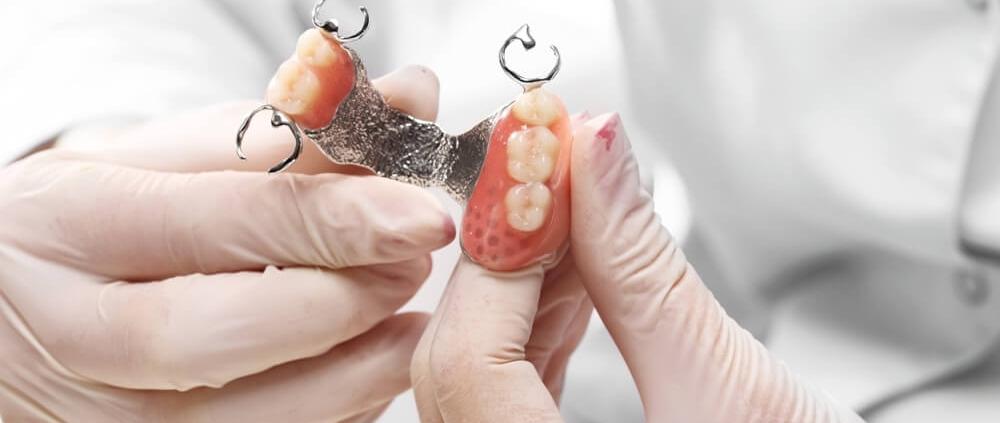 protesis dentales que son