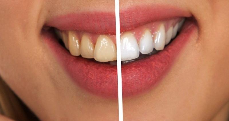 como blanquear dientes forma eficaz