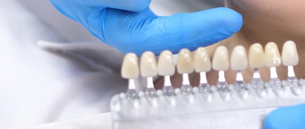 ventajas desventajas carillas dentales