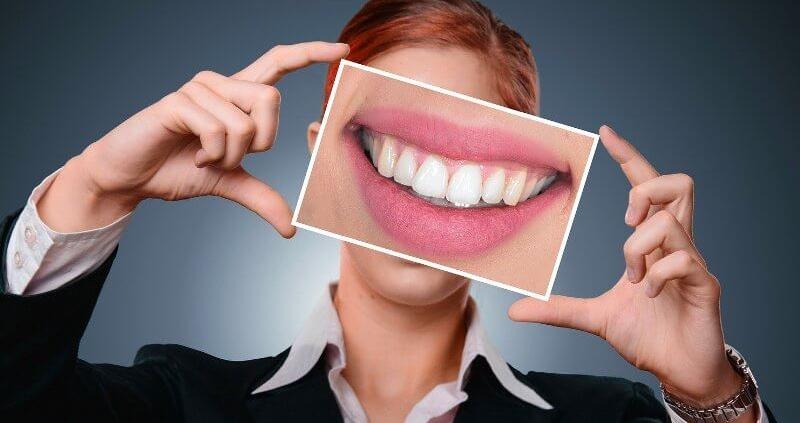 pregutnas frecuentes blanqueamiento dental