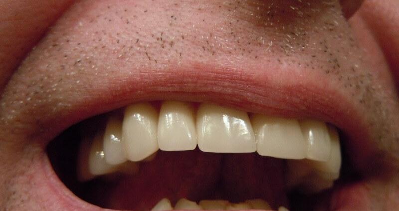 diferencia empaste reconstruccion dental