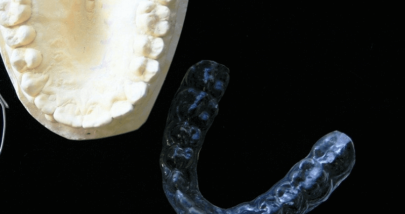 limpiar ferulas dentales