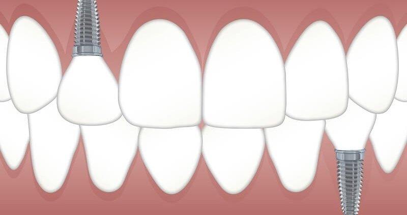 diferencia puente implante dental